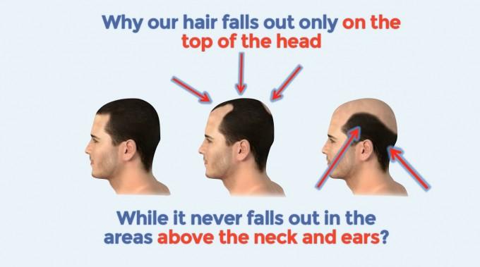 Bald Cure | Balding Cure | Reverse Male Pattern Baldness