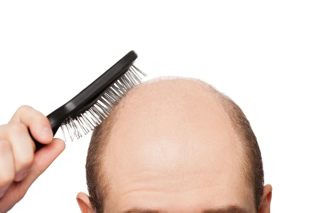 Bald Cure | Cure for Grey Hair | Cures for Baldness