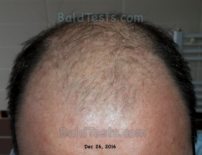 Bald Cure | Cure For Male Pattern Baldness 2014 | Home Remedies For Hair Loss