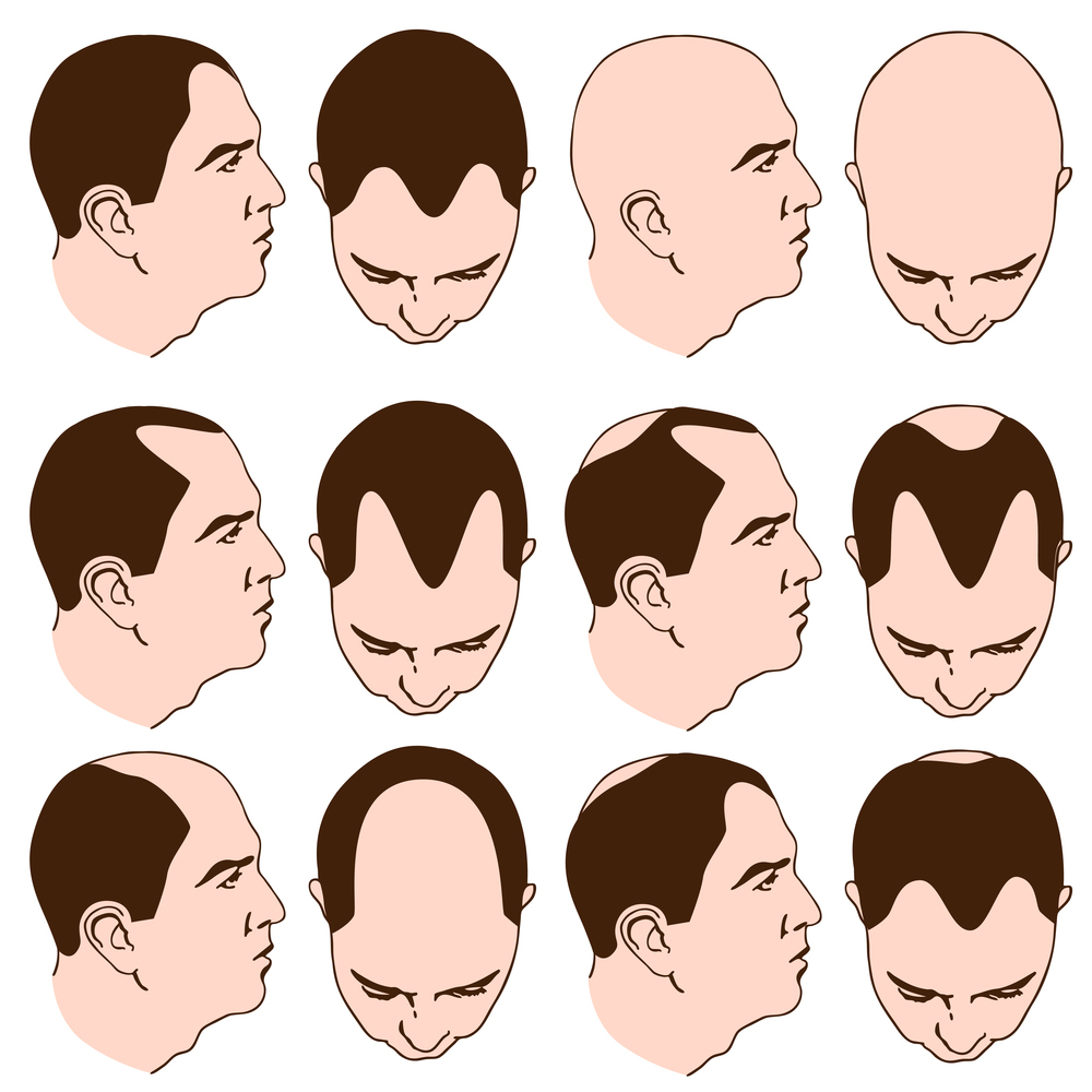 Bald Cure | Hair Balding Cure | How to Prevent Thinning Hair
