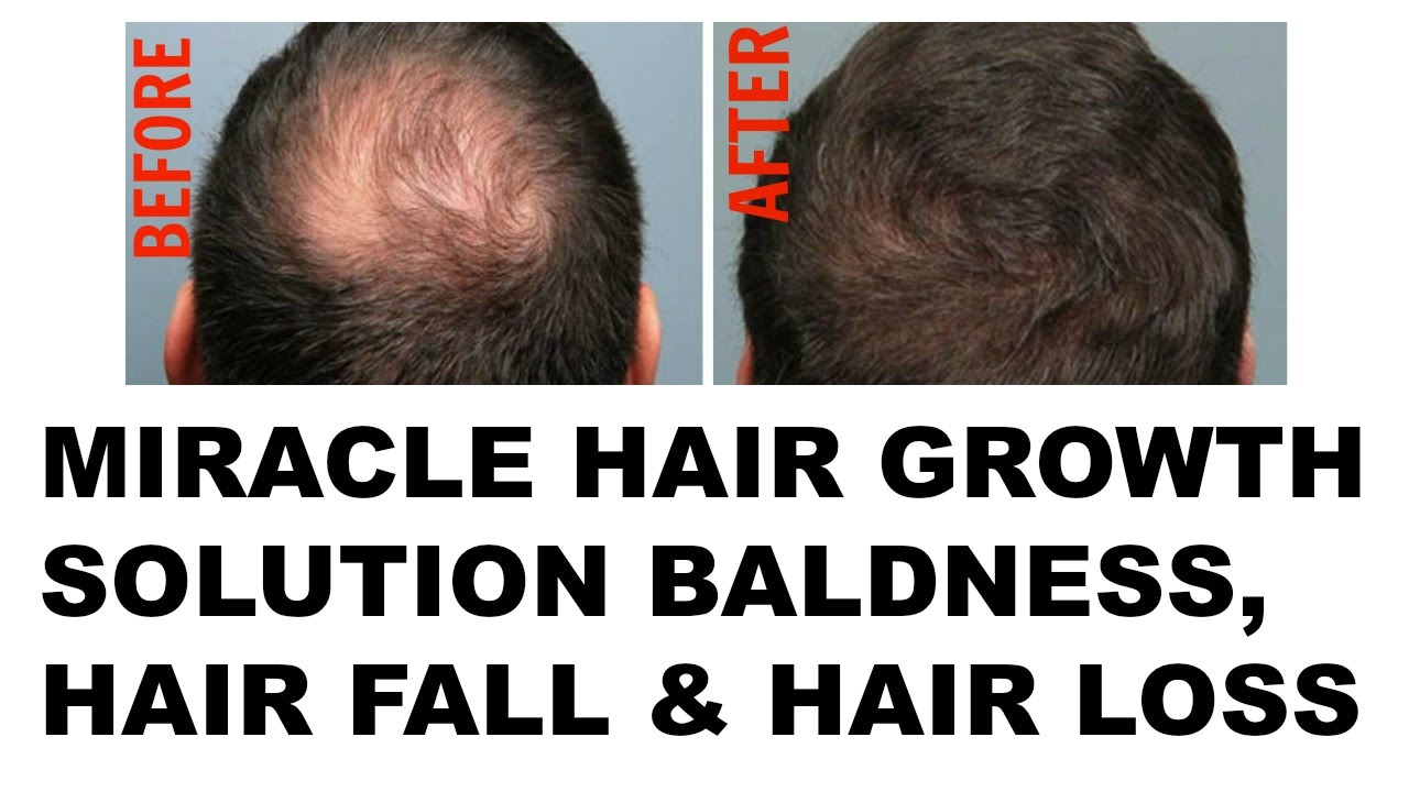 Bald Cure | Hair Loss Shampoo | Hair Thinning Solutions
