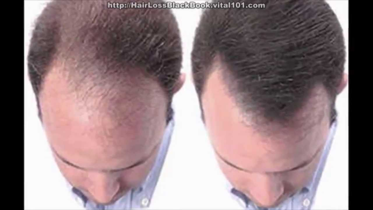 Bald Cure | Male Pattern Baldness Cures | Hair Regrowth Treatment