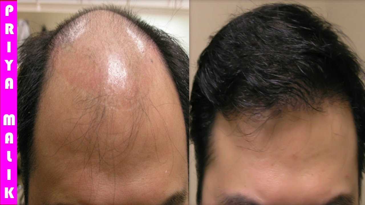 Bald Cure | Regrow Hair for Men | Natural Ways to Cure Baldness
