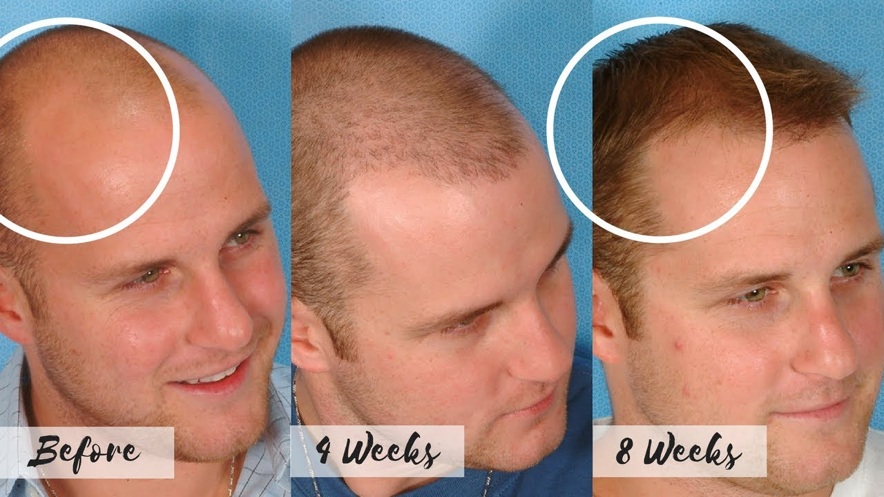 Bald Cure | Regrow Hair Products | Cure for Bald Hair