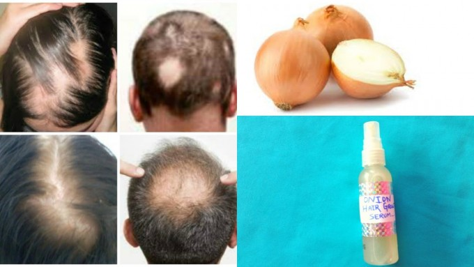 Bald Spots On Head Cure | Bald Cure | Cure For Baldness 2020