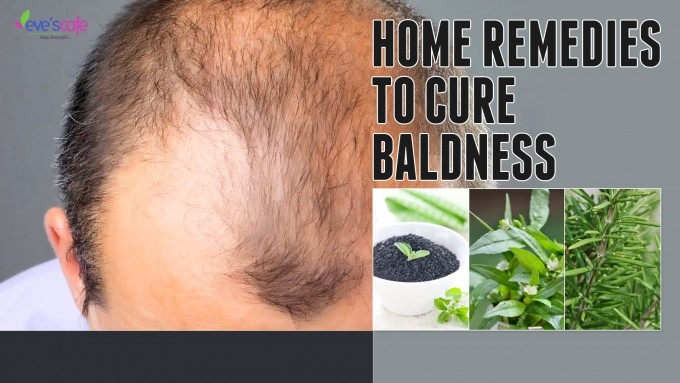 Balding Cure For Women | How To Cure Baldness | Bald Cure