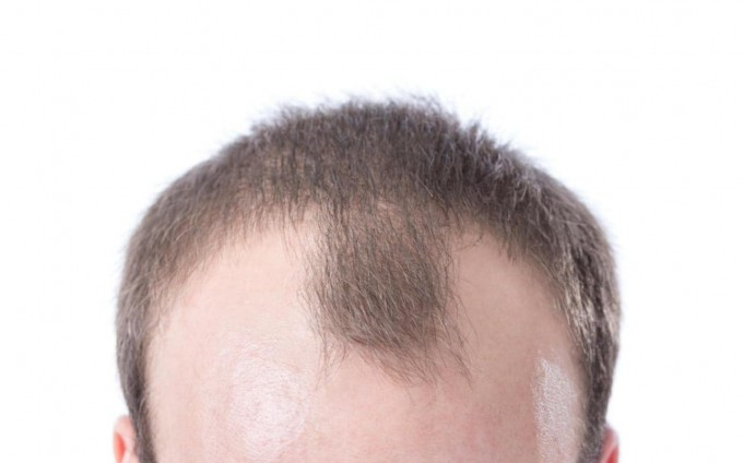 Balding Cure | Thinning Hair Remedies | Bald Cure