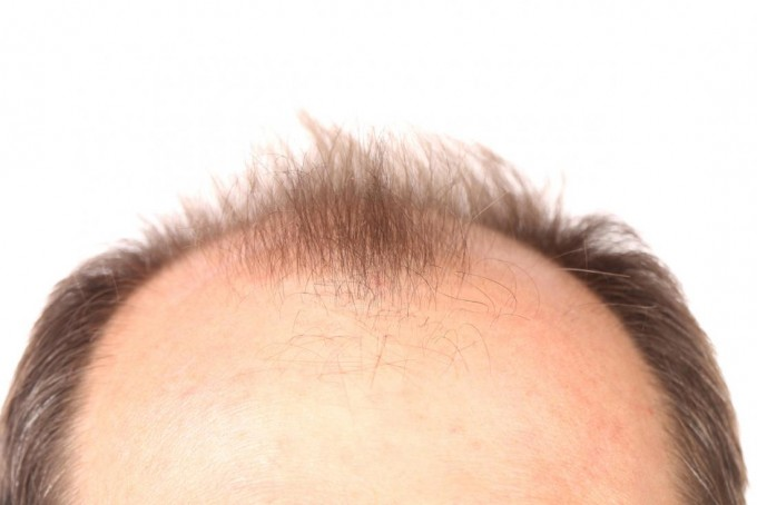 Baldness Cures | Cures For Baldness | Bald Cure