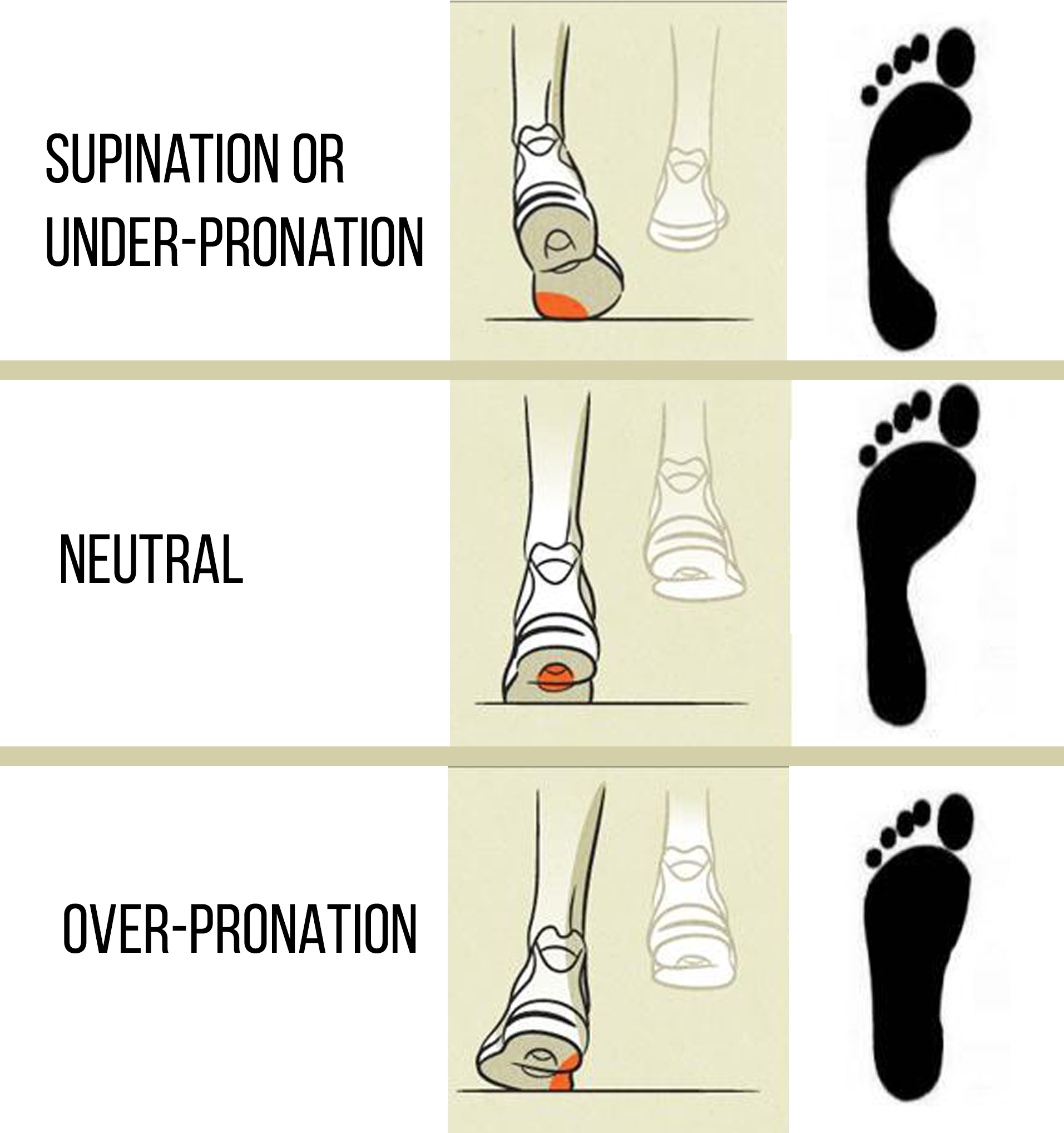 Best Shoes for Overpronation | Over Pronation | Over Pronated Feet Treatment