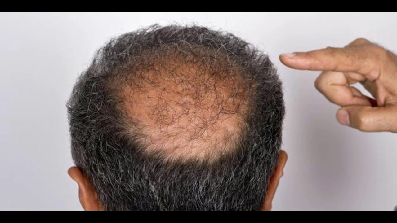 Cures for Balding | Hair Loss Breakthrough | Bald Cure