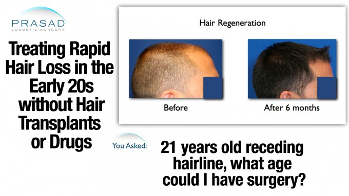 Hair Balding | Stem Cell Hair Restoration | Hair Regrowth Treatments