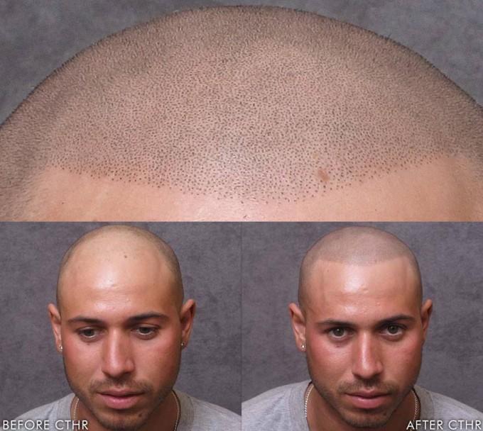 Hair Baldness Cure | Hair Loss Breakthrough | Bald Cure