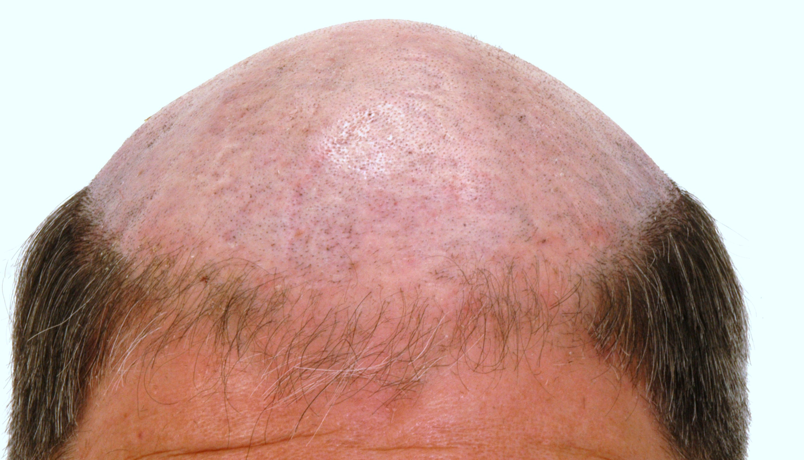 Hair Growth Pills for Men | Bald Cure | Natural Hair Loss Remedies