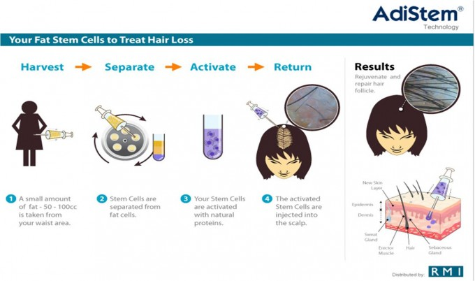 Hair Growth Stem Cell Treatment | Stem Cell Hair Restoration | Best Hair Implant Technique
