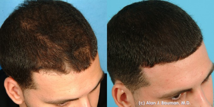 Hair Loss Cures | Hair Regrowth Science | Stem Cell Hair Restoration