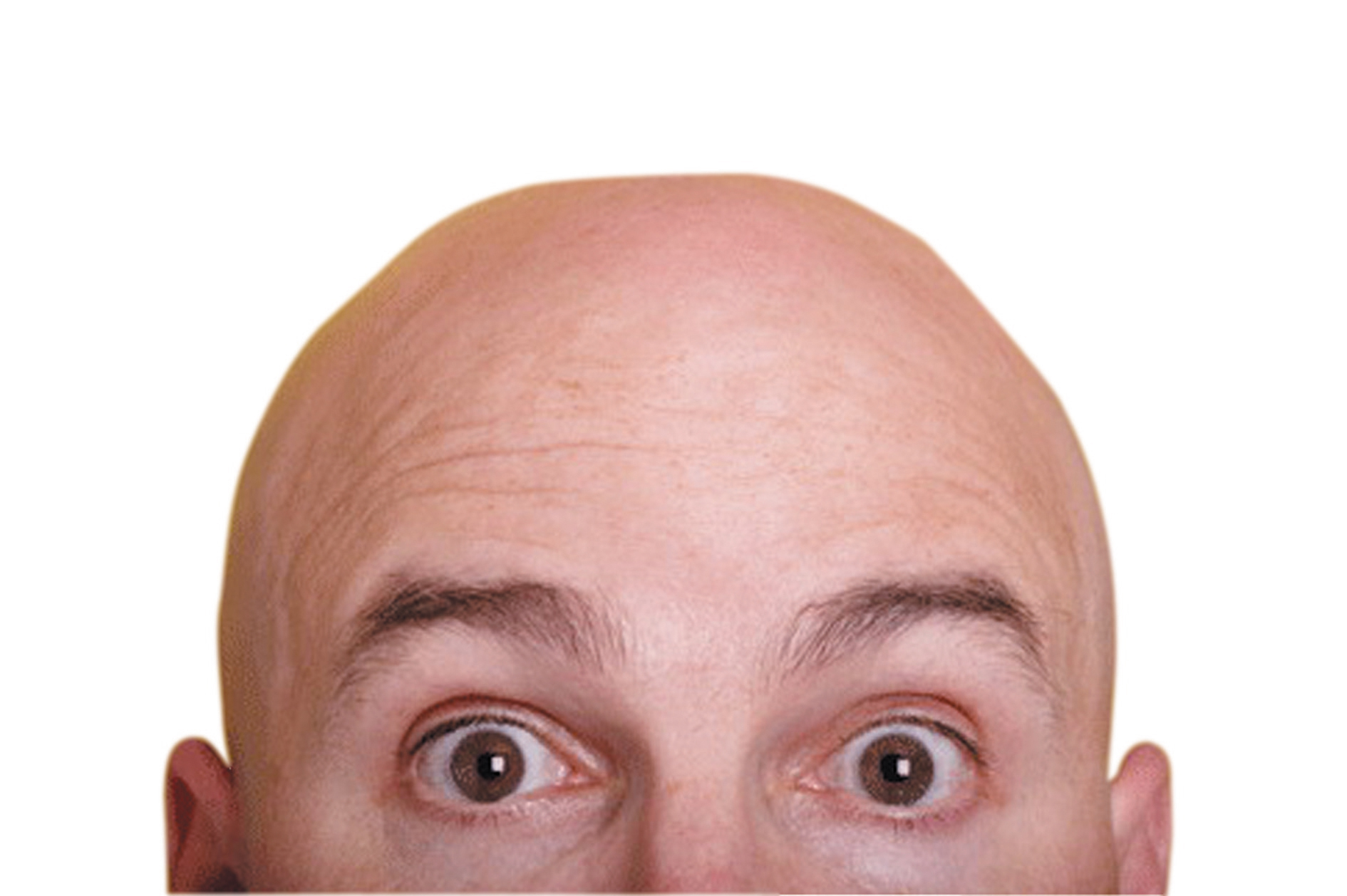 Hair Multiplication | Miracle Cure for Baldness | Bald Cure