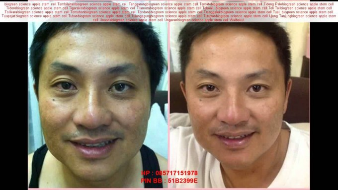 Hair Recovery Treatment | Stem Cell Hair Restoration | Stem Cell Hair Treatment