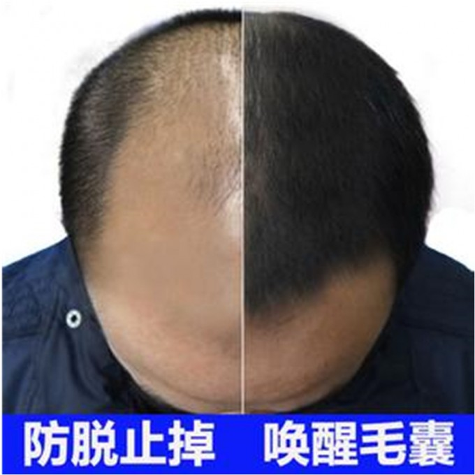 Hair Thinning Solutions   Prp For Hair Loss Reviews   Bald Cure