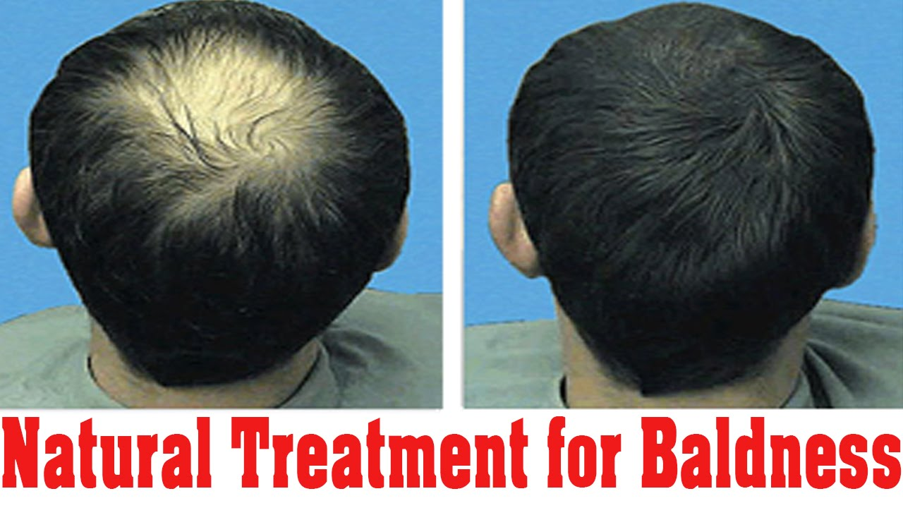 How to Regrow Thinning Hair | Regrowth Hair | Bald Cure