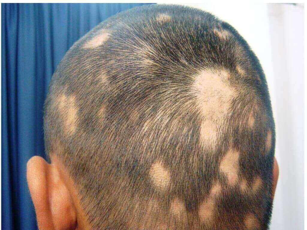 Natural Baldness Cure | Cure Spot Baldness | Bald Cure