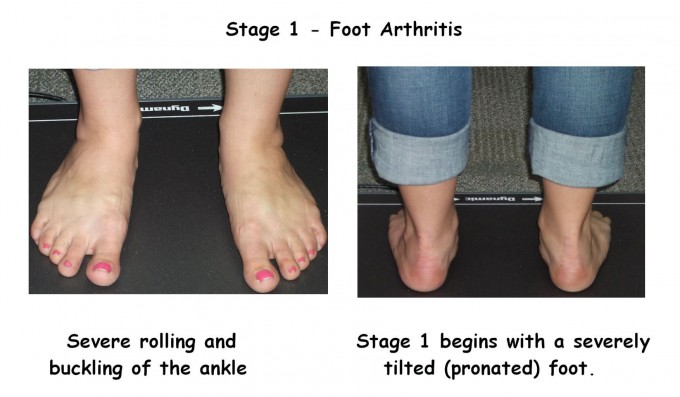 Over Pronation | Braces For Flat Feet | Asics Arch Support