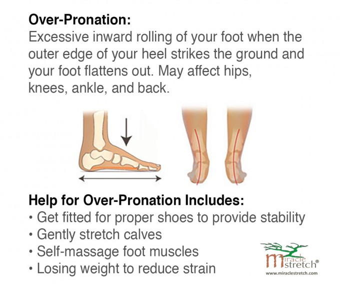 Over Pronation | Nike Motion Control Shoes | Under Pronation