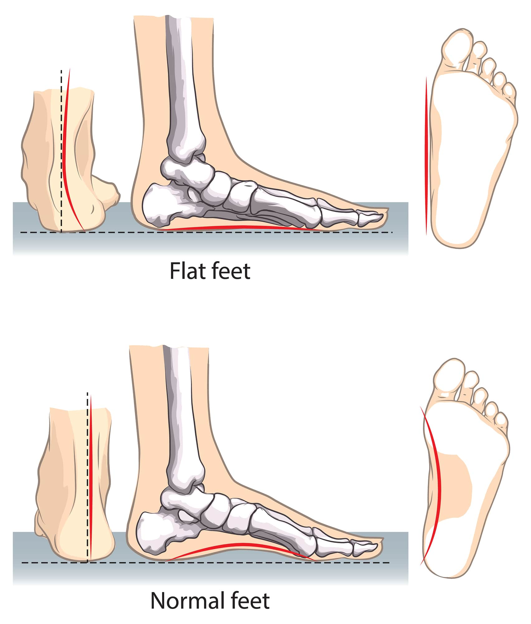 Over Pronation of The Foot | Underpronation | Over Pronation