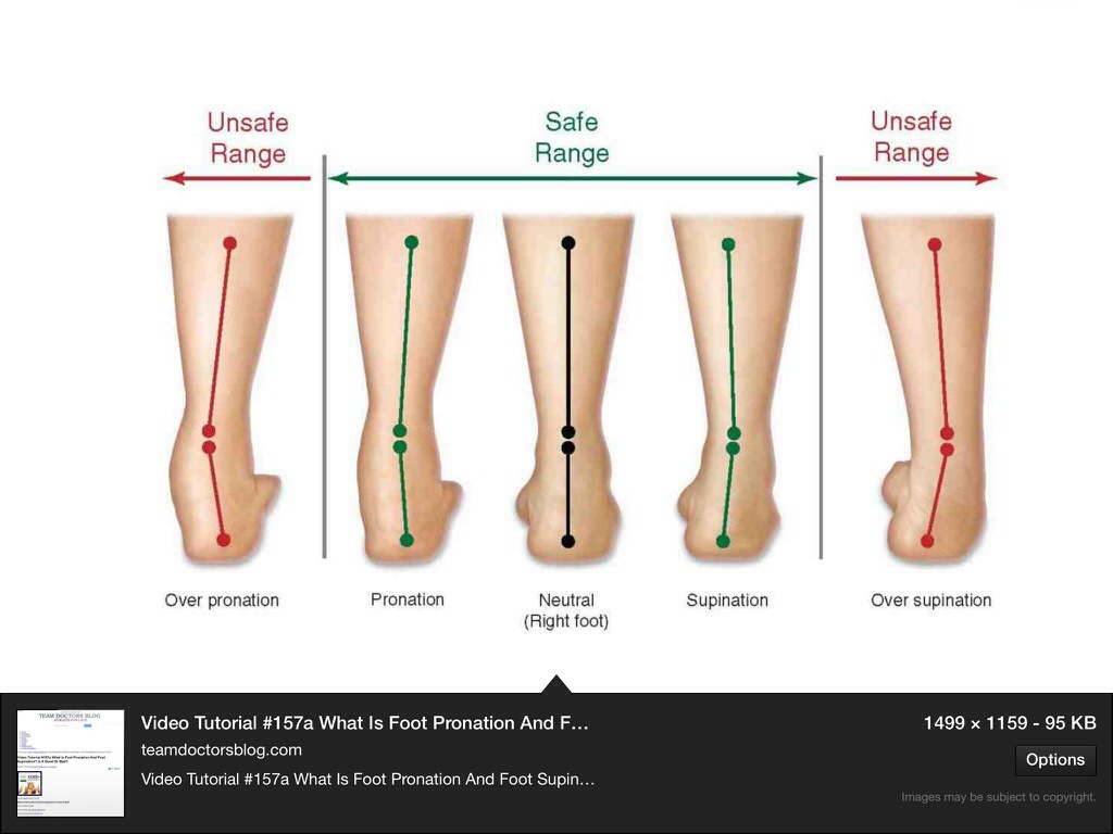 Over Pronation Support | Severe Overpronation | Over Pronation