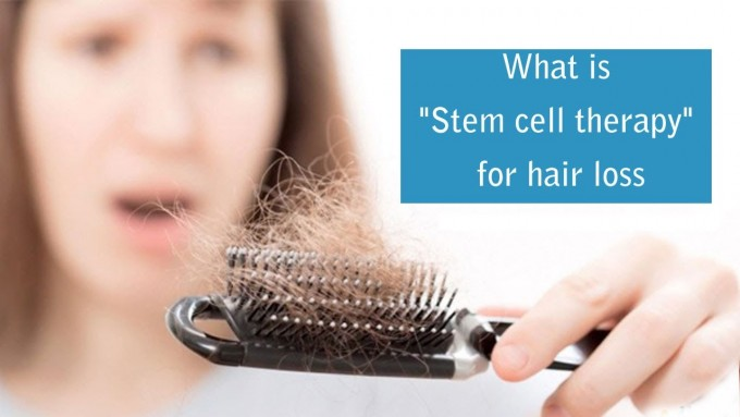 Platelet Hair Growth | Stem Cell Hair Restoration | Hair Loss Cures