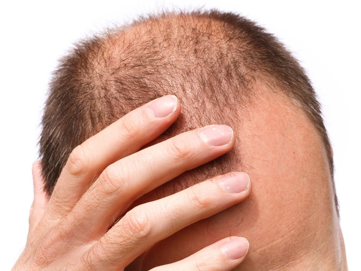 Prp for Hair Loss Reviews | Bald Cure | Thinning Hair Treatment