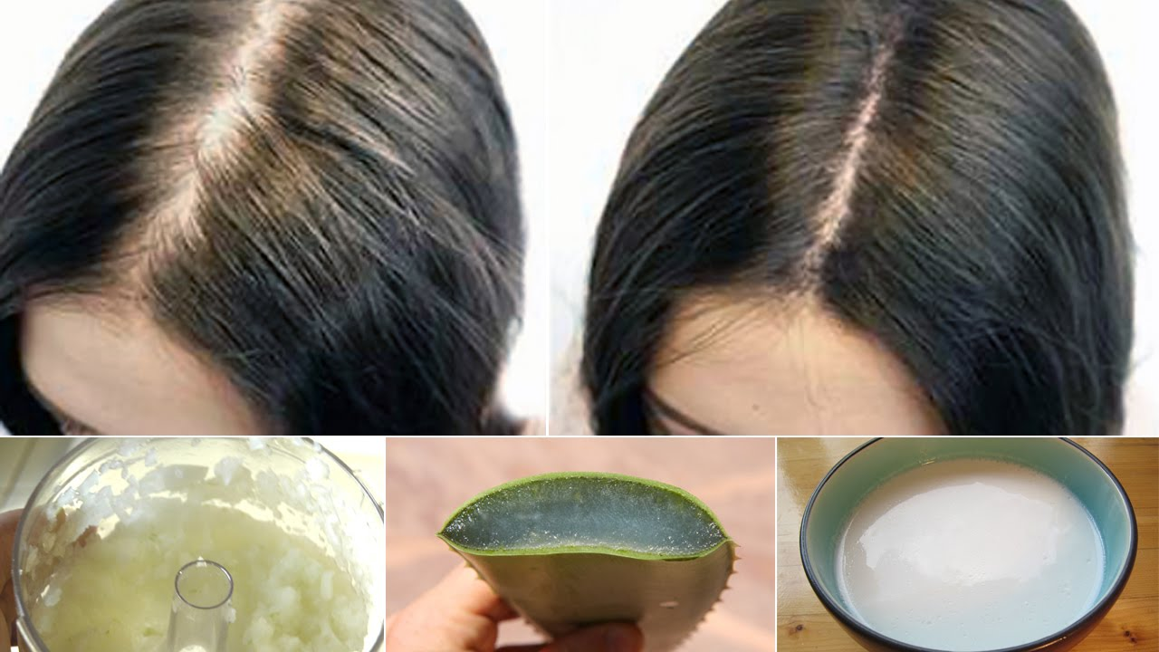 Receding Hairline Treatment | Bald Cure | Natural Way to Regrow Hair