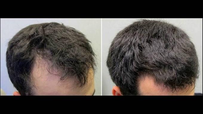 Shampoo For Hair Regrowth | Bald Cure | Hair Multiplication