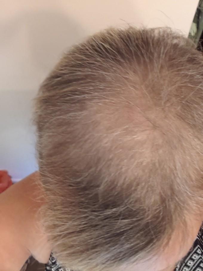 Shampoo Hair Loss | Bald Cure | Shampoo For Hair Regrowth