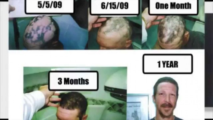 Stem Cell And Hair Regrowth | Stem Cell Hair Restoration | Stem Cell Therapy For Hair Growth Reviews