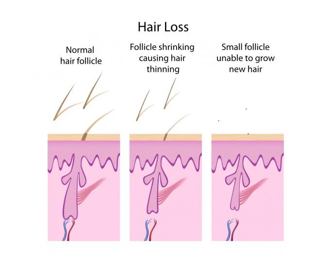 Stem Cell Hair Restoration   Balding Hair   Best Hair Transplant Procedure