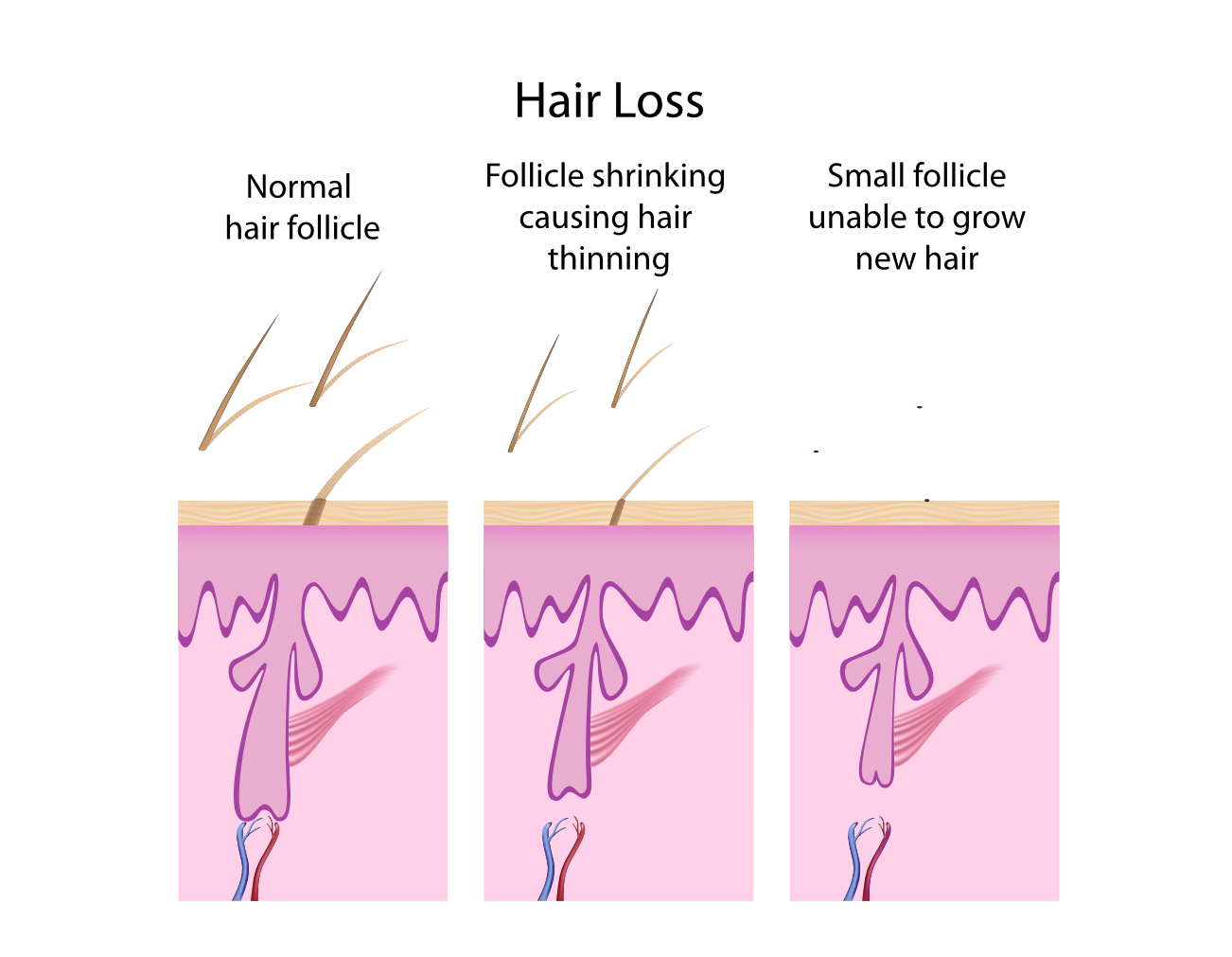 Stem Cell Hair Restoration | Balding Hair | Best Hair Transplant Procedure