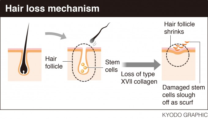 Stem Cell Hair Restoration | Prp Therapy Hair | Replicel Hair