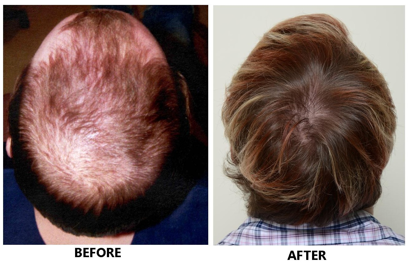 Stem Cell Hair Restoration | Stem Cell Baldness | Best Hair Transplant Procedure