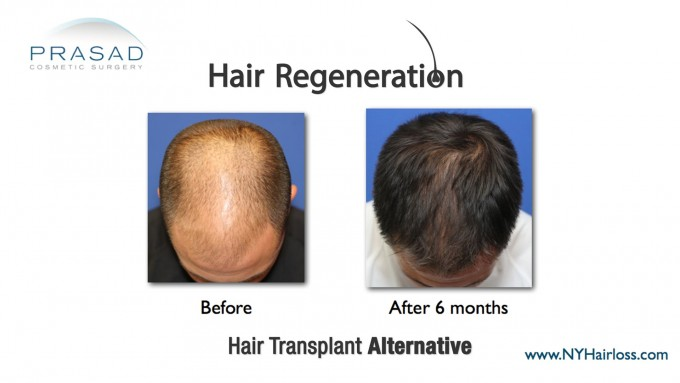 Stem Cell Hair Restoration | Stem Cell Hair Growth | Hair Growth With Stem Cell Therapy