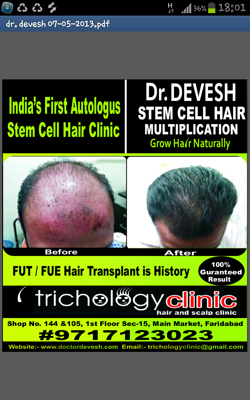 Stem Cell Hair Restoration | Stem Cell Hair Restoration Cost | Hair Restoration Stem Cell