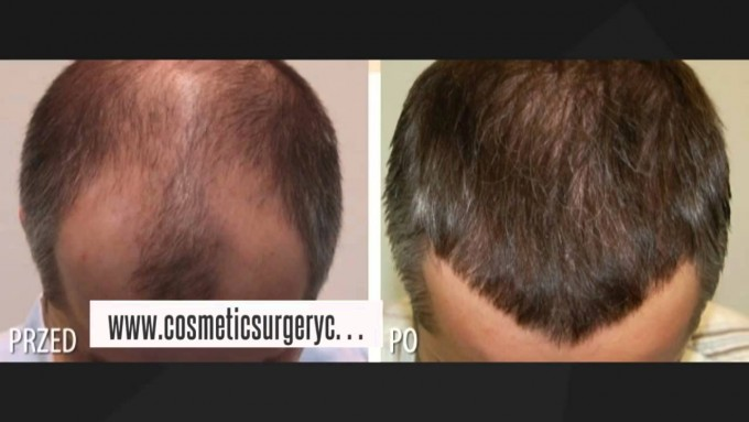 Stem Cell Hair Restoration | Stem Cell Therapy For Hair Loss | Hair Stem Cell Transplant