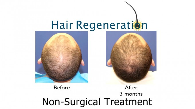 Stem Cell Hair Therapy Cost | Stem Cell Hair Restoration | Best Hair Implant Technique