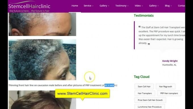 Stem Cell Treatment For Hair Loss   Stem Cell Hair Restoration   Hair Stem Cell Transplant
