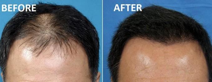 Stem Cells Hair Loss | Best Hair Replacement Procedure | Stem Cell Hair Restoration