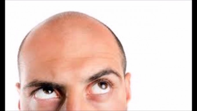 Stop Balding | Bald Cure | Cure For Baldness Coming Soon