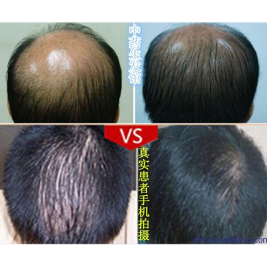 Treatment for Receding Hairline | Bald Cure | Male Pattern Baldness Cures